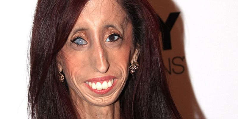 And man woman in the world ugliest the 'Psychology Today'